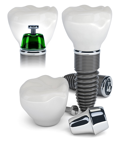 Dental Implants in Melville