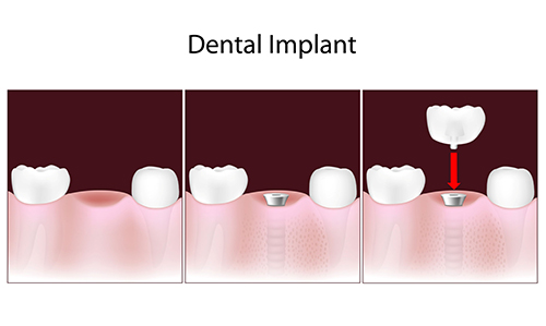 Wyandanch Dental Implants