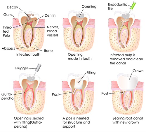Melville Root Canal