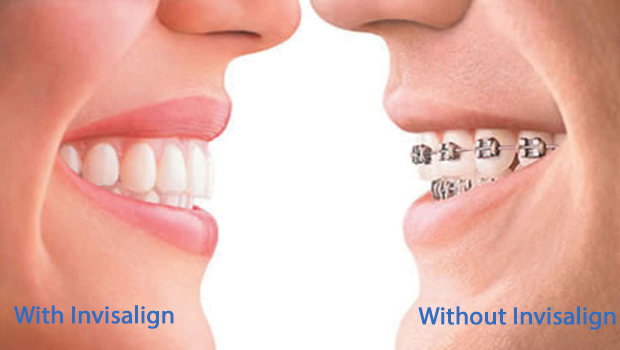 Invisalign in Wyandanch